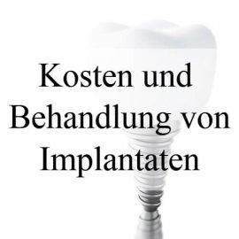 implantat kosten behandlung